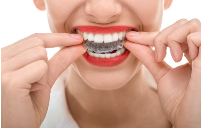 How to Clean Your Invisalign Clear Aligners