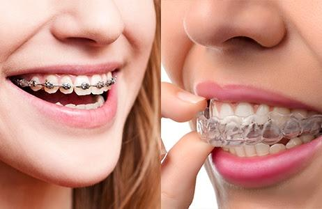 Braces vs. Invisalign—Which One is Right for You?