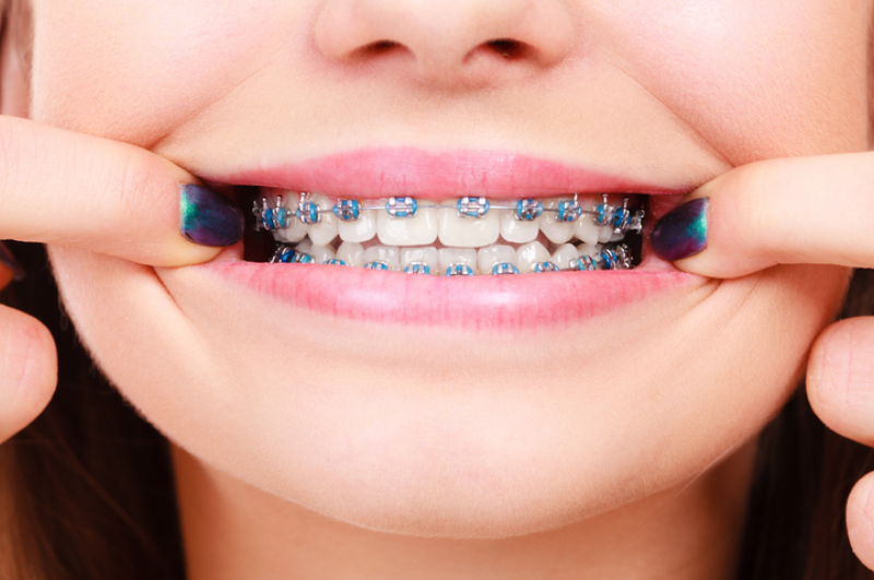 How to Tell If You're Having an Orthodontic Emergency